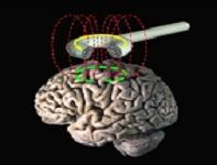 Βελτίωση της εγκεφαλικής απόδοσης