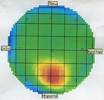 Χαρτογράφηση εγκεφάλου