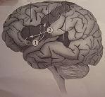 Μαγνητικός ερεθισμός στη θεραπεία του τραυλίσματος