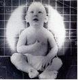 Καρδιοαγγειακά επεισόδια: Δανεικά από την «άσχημη» παιδική ζωή
