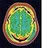 Η μνήμη στα νευρολογικά και ψυχιατρικά νοσήματα