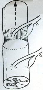 Νωτιαίος μυελός και η χορήγηση παραμαγνητικού υλικού