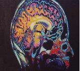 Οι υποδοχείς D2 και η σχιζοφρένεια