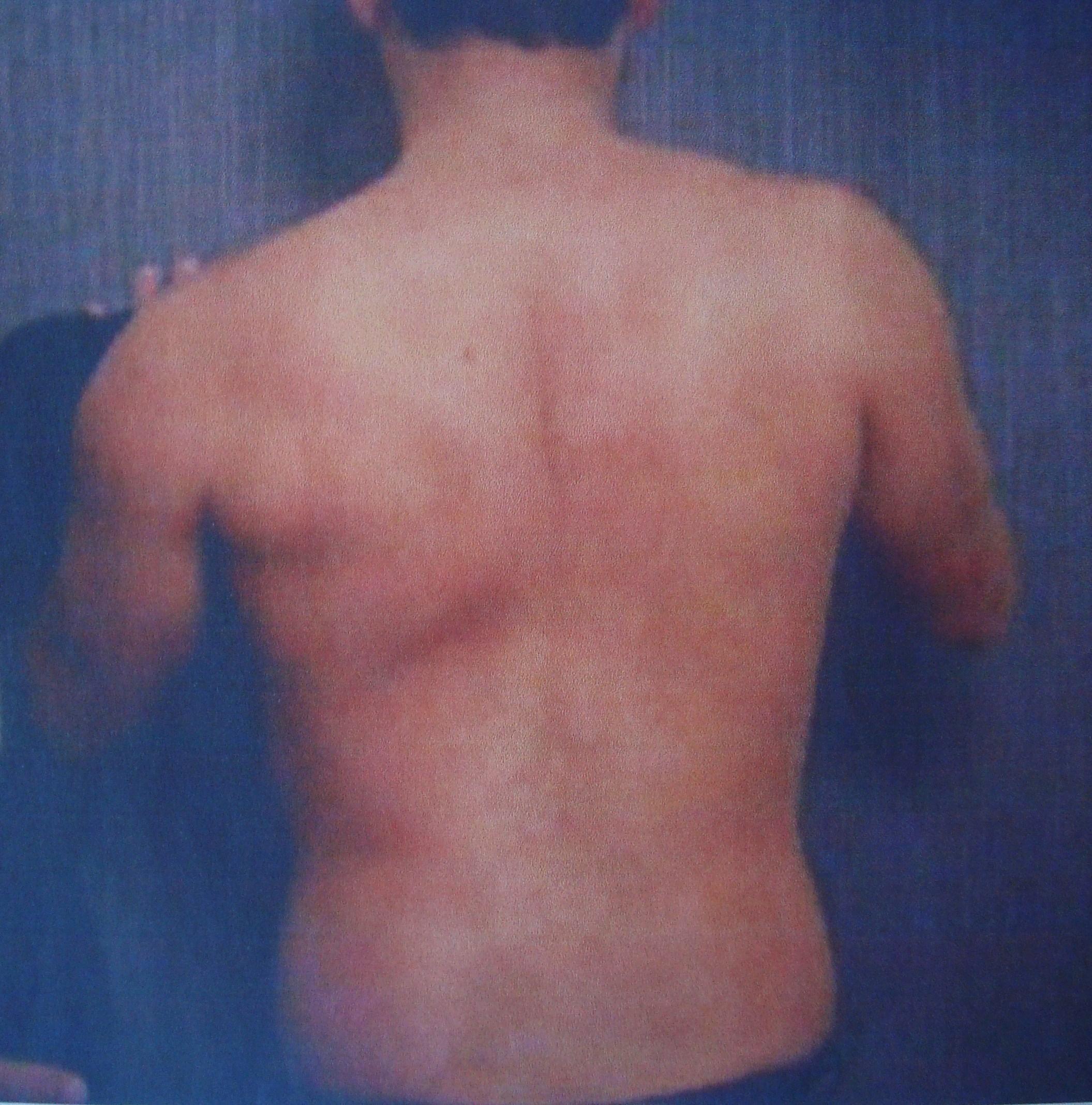 Πτερυγοειδής ώμος (scapula alata)-Λοιμώξεις