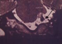 Ημισπασμός του προσώπου και χειρουργική επέμβαση