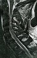 Αυχενική μυελοπάθεια και αυχενική στένωση
