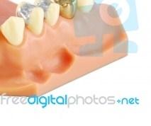 Άφθες στο στόμα και διαταραχές στο έντερο