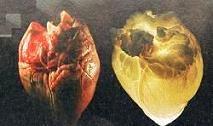 Καρδιαγγειακά νοσήματα και λειτουργία μυών