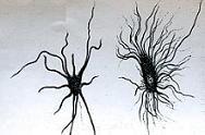 Νευρογλοία και νευρολογική θεραπεία