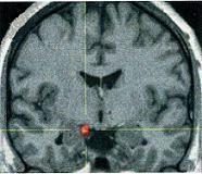 Ούτε Alzheimer ούτε Parkinson είναι η υπερπυρηνική προοδευτική παράλυση