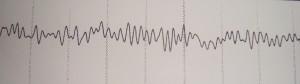 H ανάλυση του βασικού ρυθμού στο ηλεκτροεγκεφαλογράφημα