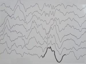 Τα Δ κύματα στον ύπνο