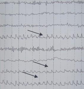 Τα Λ κύματα του ηλεκτροεγκεφαλογραφήματος
