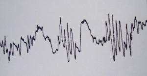 To σύμπλεγμα των πολυαιχμηρών κυμάτων στο ηλεκτροεγκεφαλογράφημα
