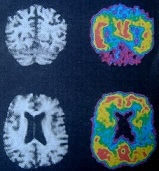 Μηχανισμός ανάπτυξης της νόσου Alzheimer