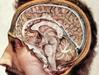 Hashimoto και νόσος του κινητικού νευρώνα