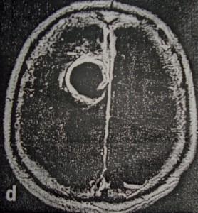 Νευρολογία-Ψυχιατρική-Οι ψυχώσεις και το ηλεκτροεγκεφαλογράφημα (3)