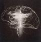 Ινομυαλγία και εγκεφαλοπάθεια