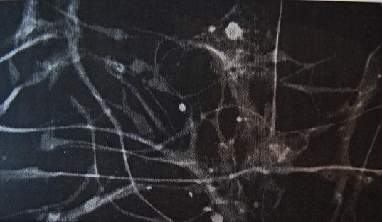 Φουμαρικό Οξύ